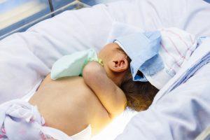 Фототерапия новорожденных при желтухе
