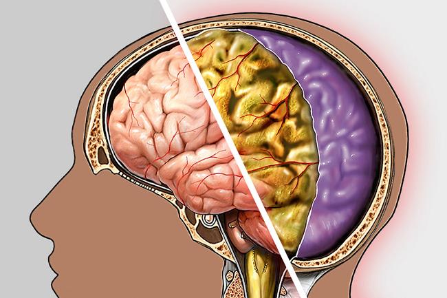 Энцефалитный менингит: симптомы, диагностика и лечение