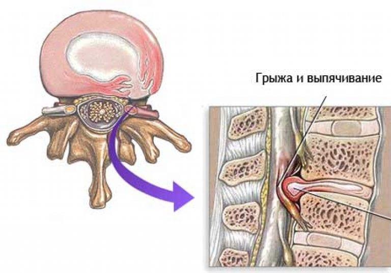 Межпозвоночная поясничная грыжа и простатит схема простатита лечение